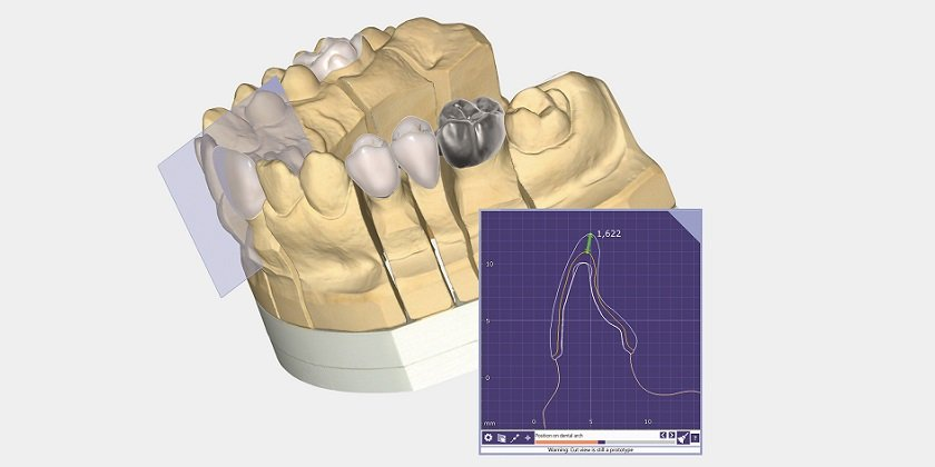 Powerful dental CAD software from Exocad